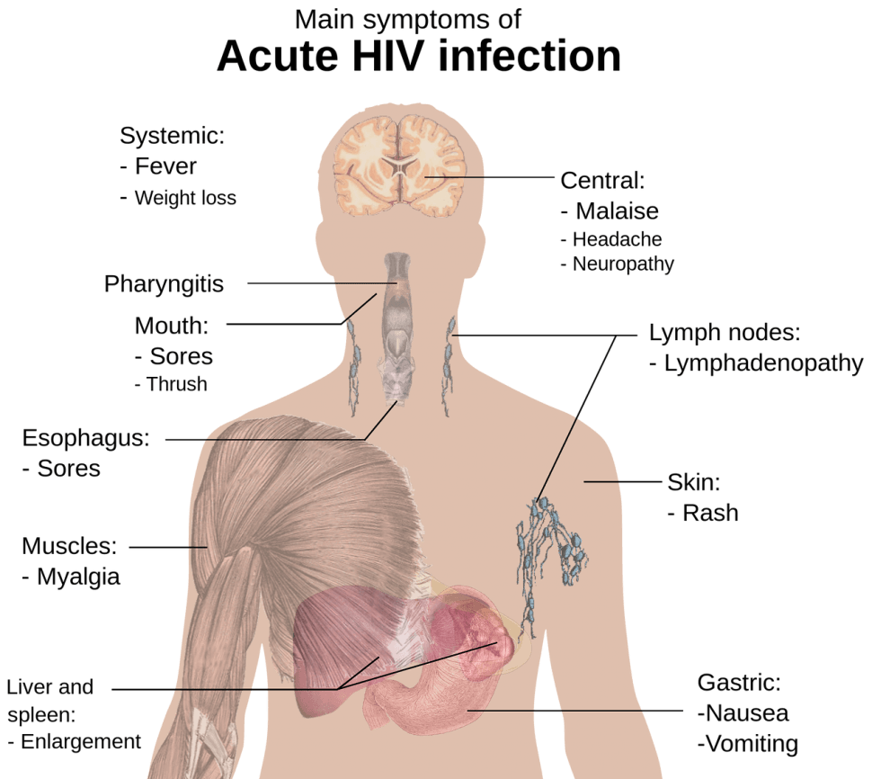 Social Security Disability andHIV/AIDS
